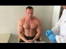 Лечение хронической спортивной травмы плеча