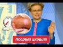Лечение Псориаза в домашних условиях!