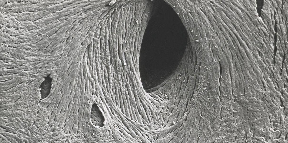 Разработана «шпатлевка», которая чинит поврежденные кости