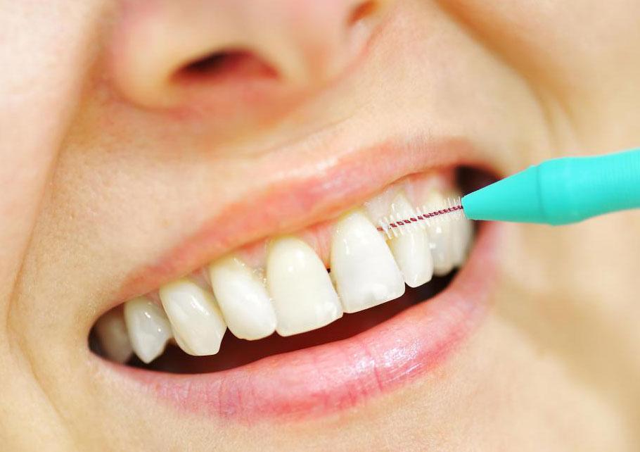 Зубные импланты могут выйти из строя из-за неправильного ухода и гигиены полости рта.