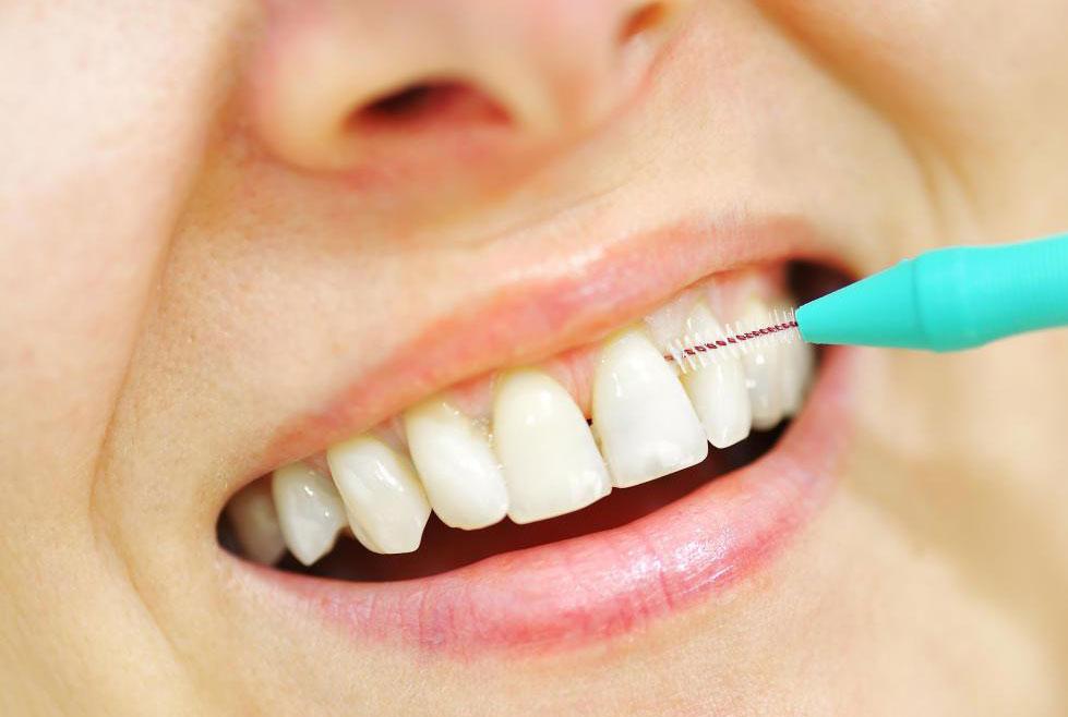 Невыполнение правил гигиены полости рта может привести к бактериальным инфекциям в зубе, которые приводят к инфекции и разрушению.