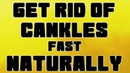 How To Get Rid Of Cankles (Swollen Ankles) EASILY, Fast At Home (2019)