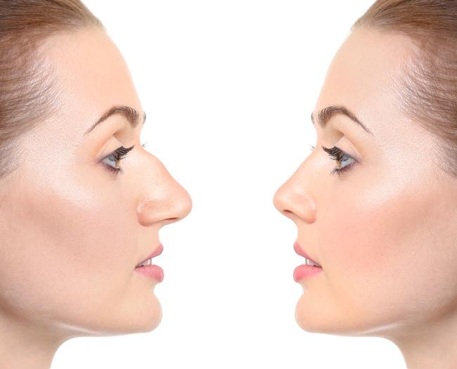 Вторичная ринопластика - это операция на носу, у которой уже была ринопластика.
