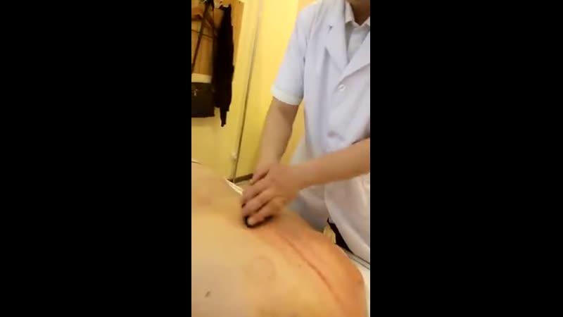 Метод Гуаша - скобление лечебными пластинами