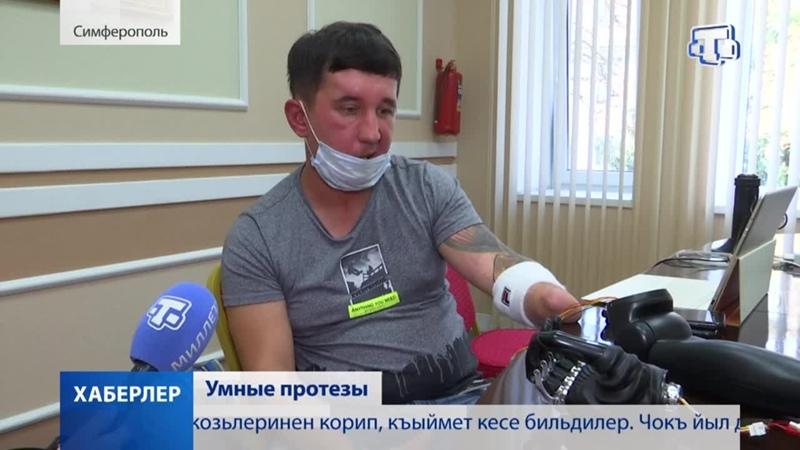 Впервые в Крыму прошел семинар на котором демонстрировались био электрические протезы